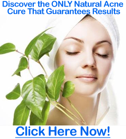 natural-acne-cure-image