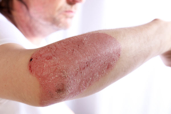 Person-With-Plaque-Psoriasis-O